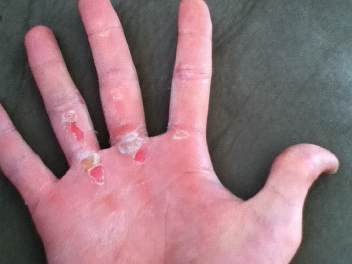 Image result for calluses on hands gym