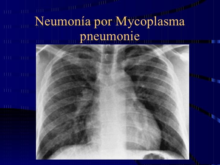 NEUMONIA POR MYCOPLASMA, CASO CLÍNICO.