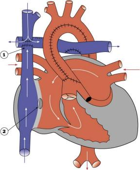 diagram 2.23 - Stage 3 of hypoplastic left heart syndrome reconstruction
