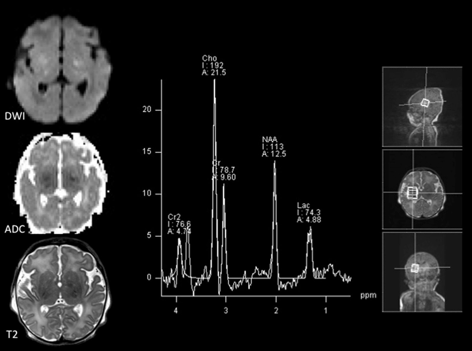 The Use Of Magnetic Resonance Spectroscopy In The Evaluation Of Pediatric Patients With Seizures