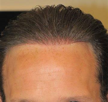 hair transplant fue biofibre or nido exoderm medical