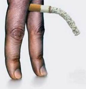 Smoking is a leading contributor to erectile dysfunction.