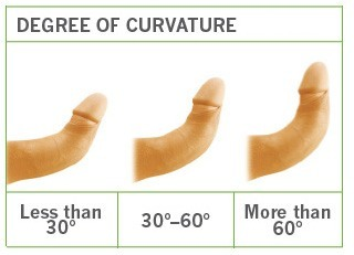 degree of penis curve
