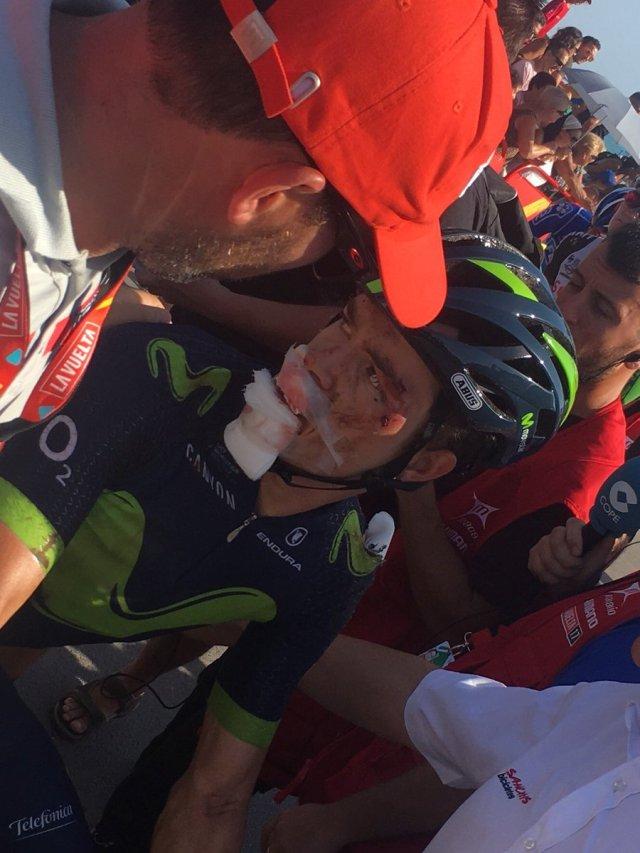 Betancur pedalou 37km com tornozelo quebrado!