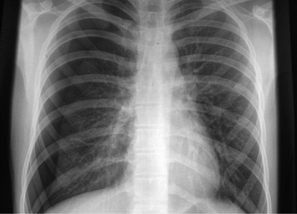 Teen that developed chest pain abruptly while playing basketball