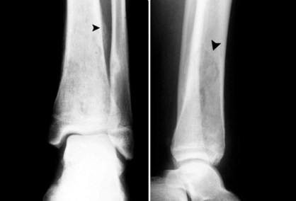 Osteomyelitis 04: Take a picture… It'll last longer – PEMBlog