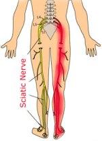 sciatic-nerve-illustration2