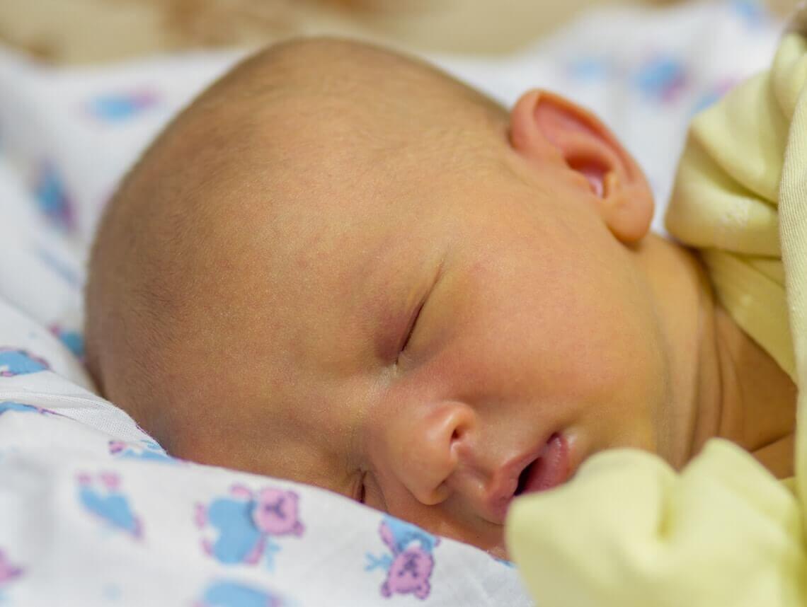 tratamiento para la ictericia neonatal
