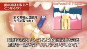 歯の神経治療の説明