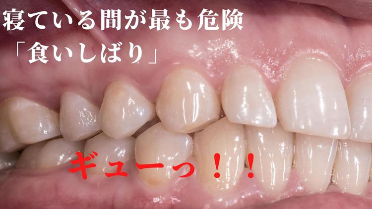食いしばり・歯軋りなら香川県高松市の吉本歯科医院
