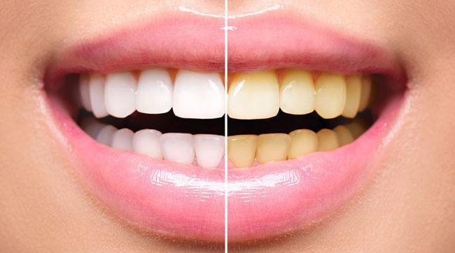 Clareamento dental - Antes e depois