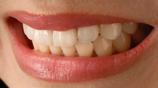 Sorriso bonito - Harmonização facial