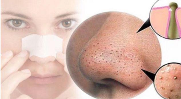 Sekreti indian për heqjen e pikave të zeza në hundë - pergatit.com