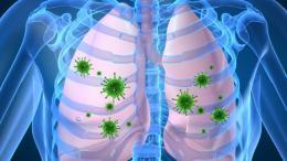La neumonía mata a 941 mil niños menores de 5 años