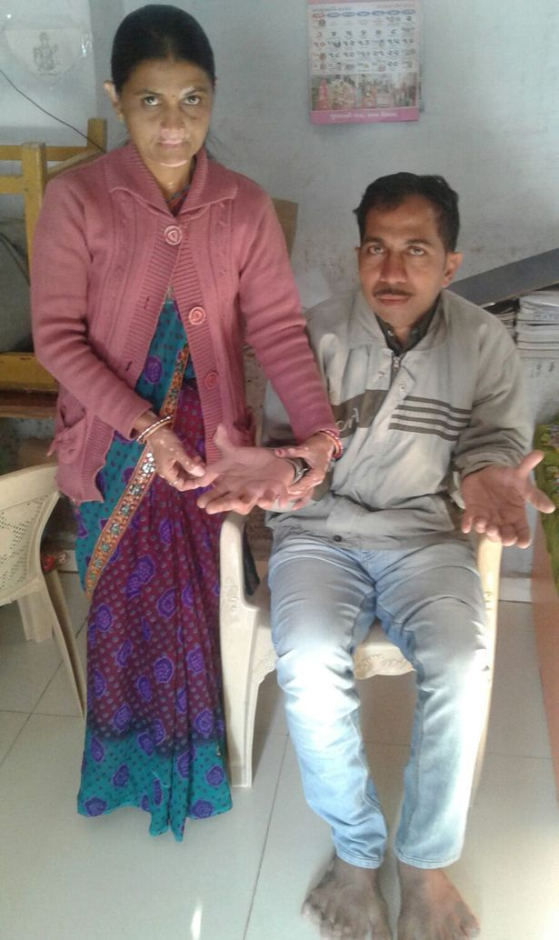 PAY-Devendra-Suthar-showing-his-28-fingers-and-toes (2)