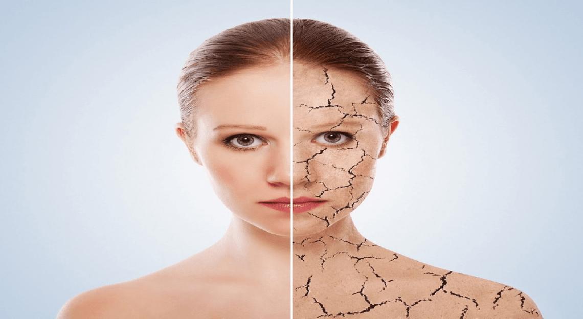 Inquinamento: il nuovo nemico della pelle