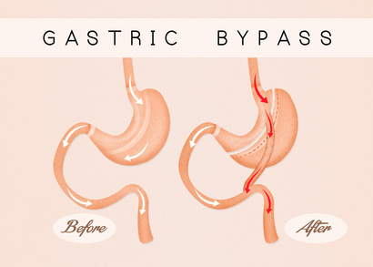 5 Steps to Ensure Gastric Bypass Surgery is Effective for You