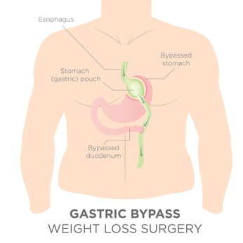 Answering 5 FAQs about Roux-en-Y Gastric Bypass
