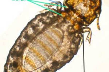 lice blog lice busters america s all natural lice head lice pictures how do you treat and prevent head lice abscess on scalp infected with head lice
