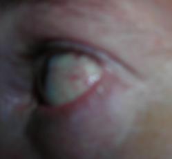 dewhit_eye_20070603214500.jpg