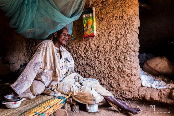 Alou Gado est aveugle. Il s'est fracturé le tibia il y a plusieurs mois, depuis il patiente dans sa chambre, espérant guérir et marcher à nouveau.