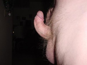 Peyronies pictures commonly show a deformity pattern of an upward curved penis as a result of Peyronie's plaque formation