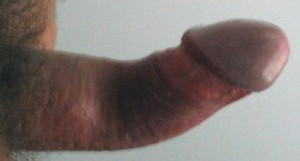 Peyronie's Disease upward penile curvature closer to glans (head) -<br /> rather common