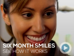 Six Month Smiles Braces Grand Rapids MI Dental Services How it Works