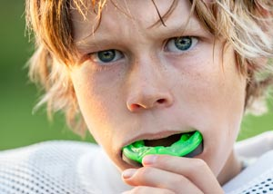 Sports Mouthguards Dentist Grand Rapids