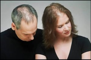 hairloss can affect men and women