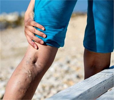 krampfadern blutstau in den beinen