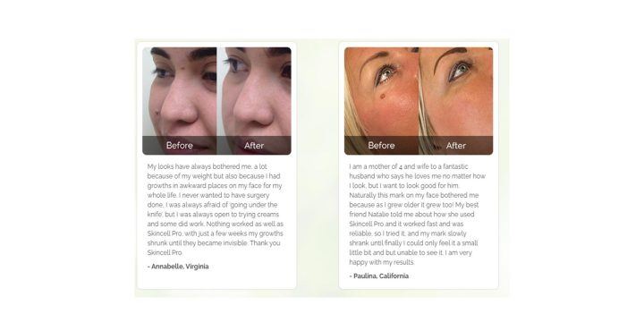 Skincell Pro customer reviews