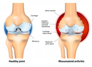 Rheumatoid Arthritis and disability