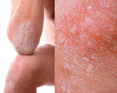 Homeopathy for psoriasis