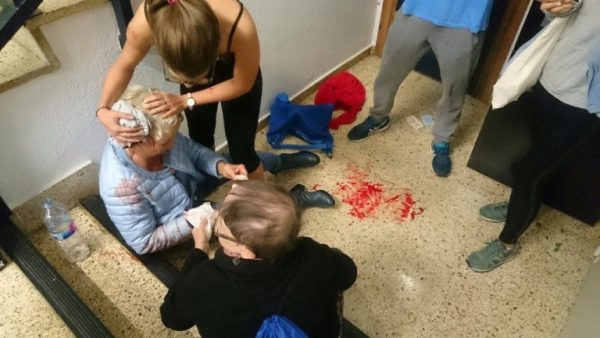 An elderly voter injured by Spanish police