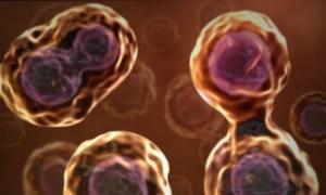 apparecchi-acustici-cura-ipoacusia-cellule-staminali-1