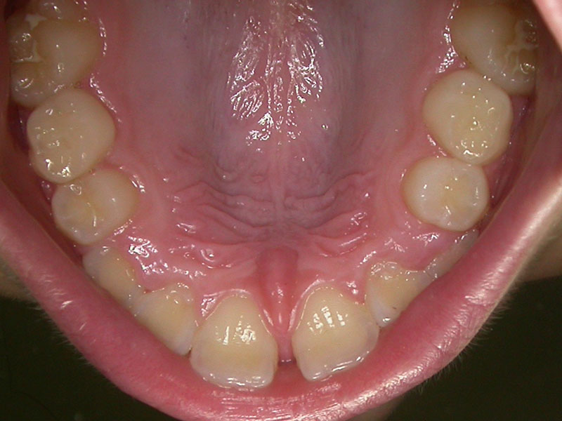 dental_shots_10
