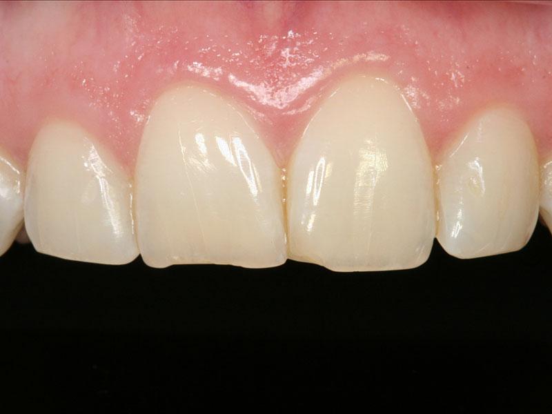 dental_shots_7