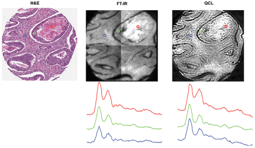 H&E-stained section of human colon tissue, and FTIR (with 16 coadditions) and Spero microscope transmission images of a 4-µm thick serial section of the same sample on barium fluoride. FTIR image shown at 1650 cm-1, Spero microscope image shown at 1652 cm-1.