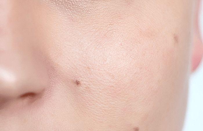 After skin smoothing