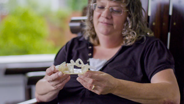 Realistic Stratasys 3D Printed Model Guides Surgeons to Successful Treatment of Near-Fatal Brain Aneurysm. (Photo: Business Wire)