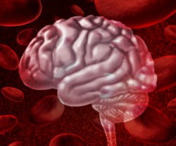 Parkinsons and Intracranial hemorrhages