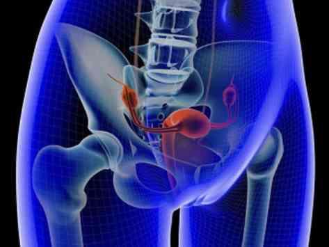 Image result for endometrial cancer