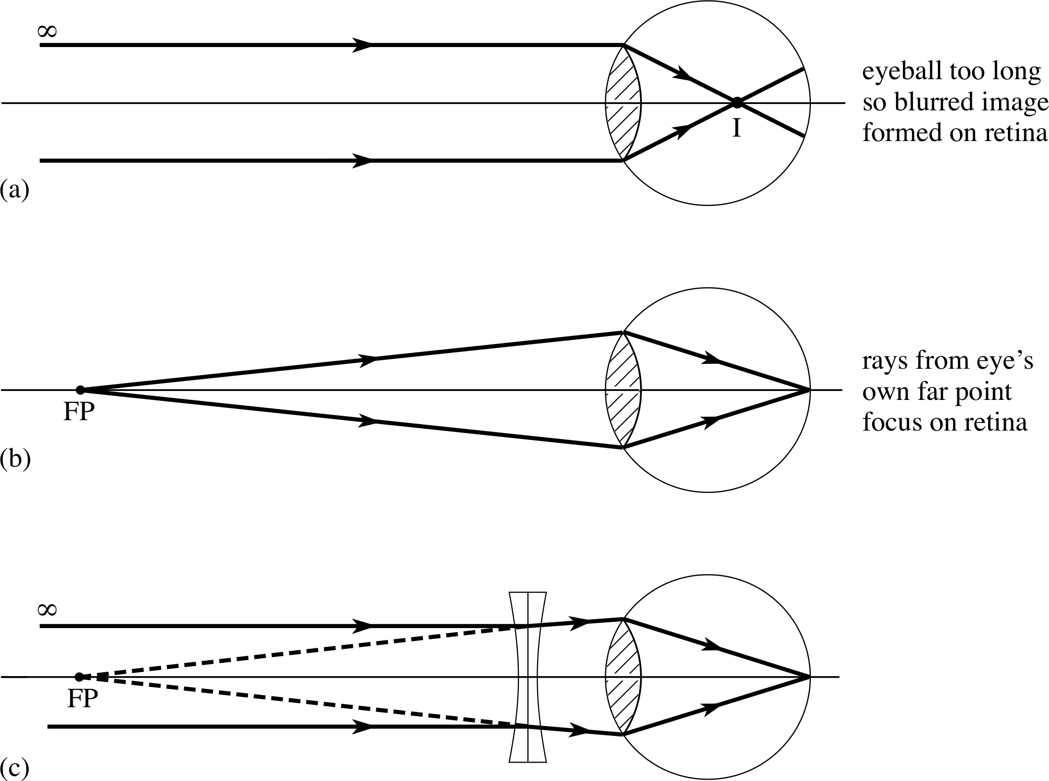 30 Draw The Ray Diagram For Nearsighted People