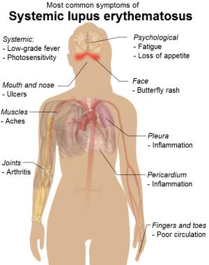 Systemic Lupus Erythematosus Case Study  Physiopedia