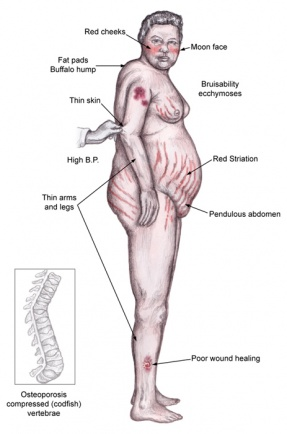 Cushing's Syndrome Case Study  Physiopedia
