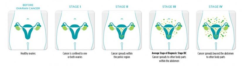825px-Stages_cancer Stage 4 Cervical Cancer Prognosis