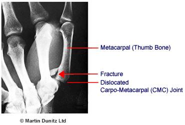 Anatomy of a Bennett's Fracture injury