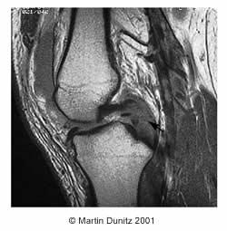 MRI scan of Posterior Cruciate Ligament injury