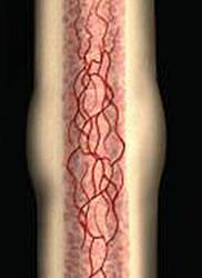 Enlarged Healing Bone